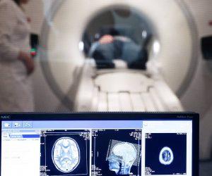 Неуживчивость может защищать пожилой мозг от слабоумия