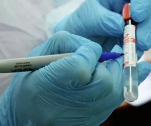Первым зараженным коронавирусом в Крыму оказался житель Евпатории