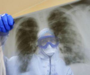В Крыму число госпитализаций больных с пневмонией выросло на 133%